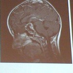 craniopharyngoma