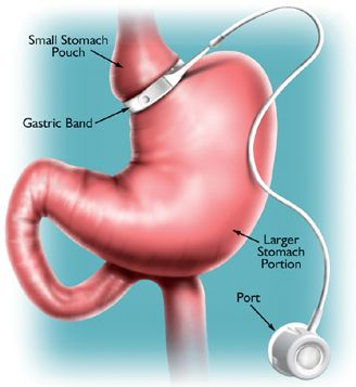 sharma-obesity-adjustable-gastric-banding2
