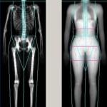sharma-obesity-dexa-scan1