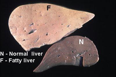sharma-obesity-fatty-liver-disease1