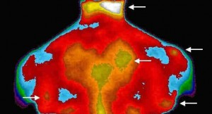 sharma-obesity-fibromyalgia1