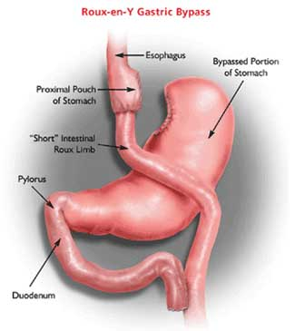cancer gastric bypass)