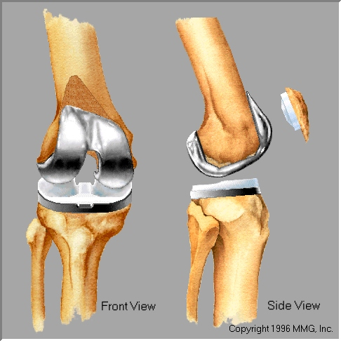 sharma-obesity-knee-arthtoplasty2