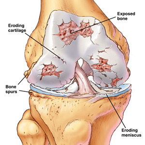 sharma-obesity-knee-osteoarthritis1
