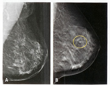 sharma-obesity-mammography
