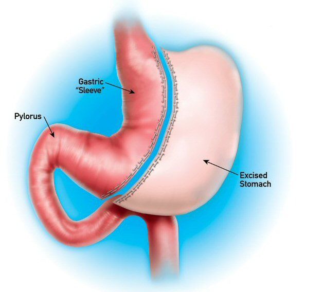 sharma-obesity-verticalsleevegastrectomy